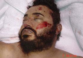 Vorgebliche Leiche al-Zarqawis